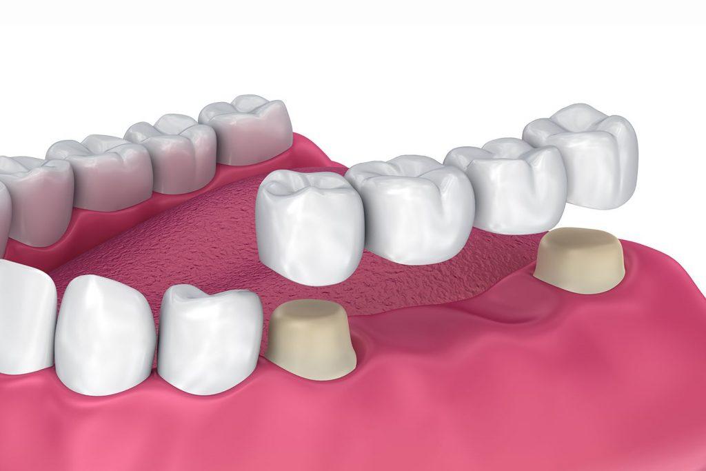 Puente dental