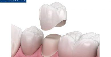corona dental funda dental
