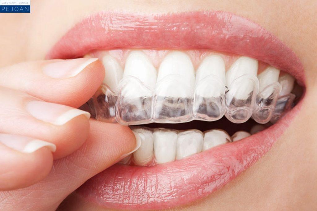 Ferula dental